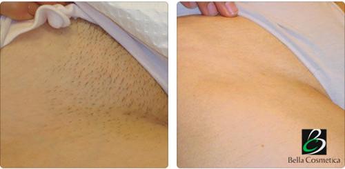 лазерное удаление волос оборудование